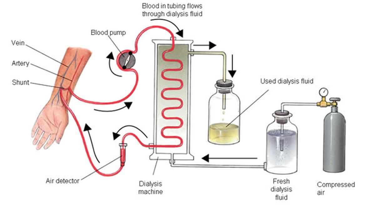 Dialysate Composition In Hemodialysis And Peritoneal